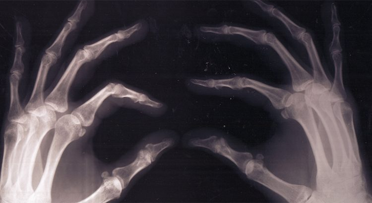 Cannabis et fracture des os