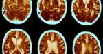 Les consommateurs de cannabis ont une irrigation anormale du cerveau