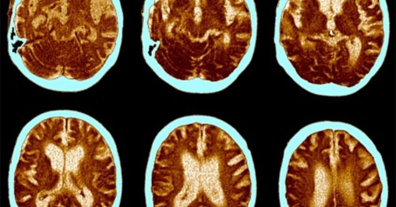 Cannabis et irrigation du cerveau