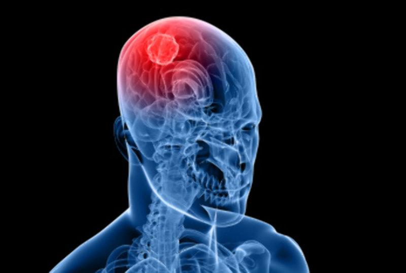 Les Anglais recherchent un lien entre le CBD et la réduction des tumeurs aux cerveau chez l'enfant