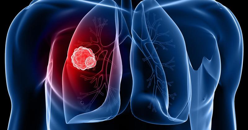 Cannabinoïdes et nano-particules