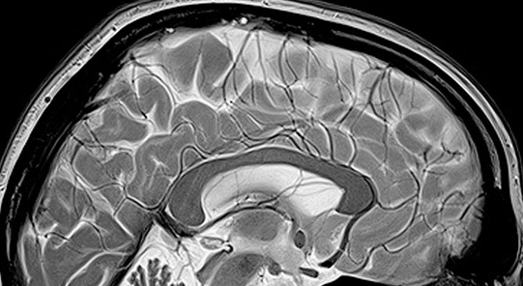 CBD et THC sur le cerveau