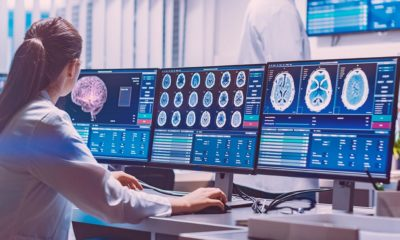 Etude Sativex et cerveau