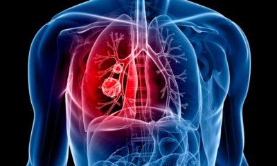 Cancer du poumon et CBD